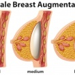 What is Breast Implants
