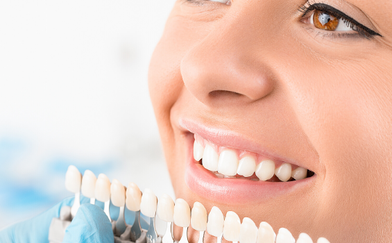 teeth whitening in San Antonio