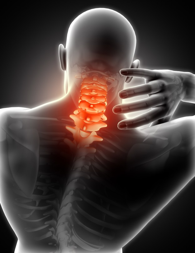 Neck Pain: Causes, Symptoms, And Treatment towards a Better Life