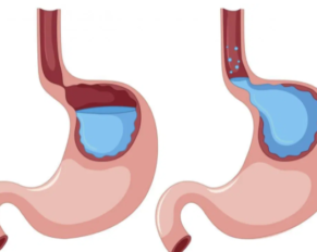 Natural remedies for Gastroesophageal Reflux disease